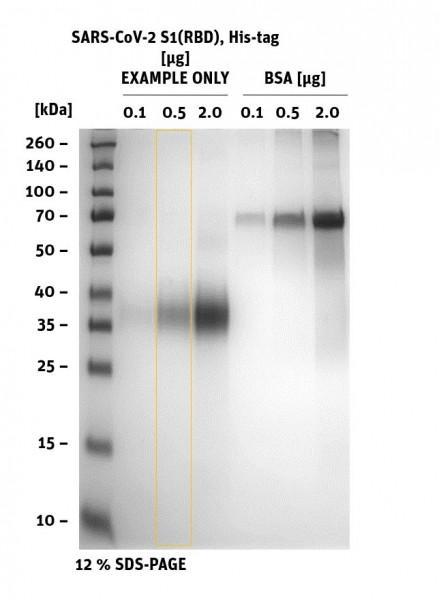 SARS-CoV-2 (2019-nCoV) Spike S1 Protein (RBD) - SDS-PAGE